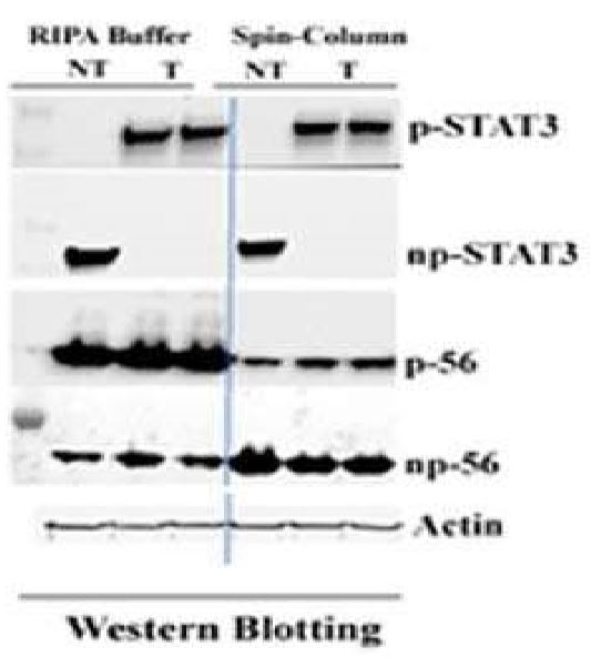 Phosphoproteins by Western Blot