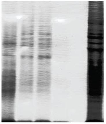 Protein Extraction from Adipose Tissues