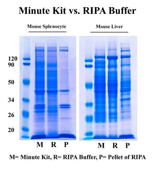 Stop Protein Loss caused by RIPA